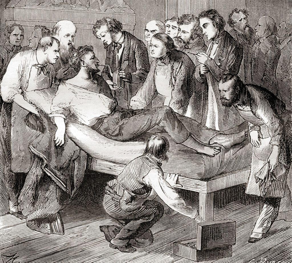 The first public demonstration of the use of inhaled ether as a surgical anaesthetic in 1846 by an American dentist, William Thomas Green Morton (1819 – 1868)